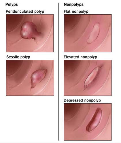 Pictures Of Anal Polyps