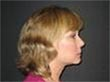 Surgery India Face Lift Surgery, ,Face Lift, Face Lift Surgery, India Face Lift Surgery, India Types Of Face Lift Surgery