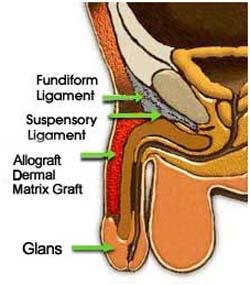 penis lengthening operation