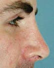 Surgery India Nose, , Surgery India Rhinoplasty,India Nose Surgery, India Rhinoplasty, India Face