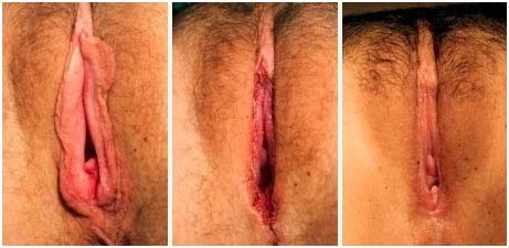 This tightens vaginal muscles India