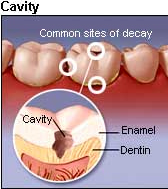 Dental Filling India, Cost Dental Cavity Fillings India, Mercury Fillings
