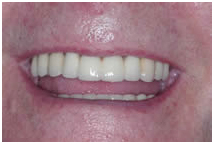 India Dental Implant, Cost Dental Implant India, India Affordable Dental Implants Dentist