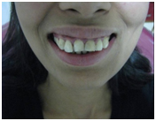 Laser Dentistry Treatment India, Cost Laser Dentistry Hospital India, Dental Laser Treatment