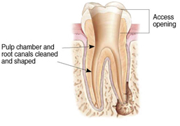 Root Canal Treatment India, Cost Root Canal Treatment Hospital India