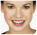 Orthodontists Dental Braces, Dental, Treatment, Invisible Braces, Dental Implants, Braces (Orthodontic Treatment) Services