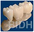 India Surgery Teeth Polishing Fluoride,Cost Teeth Polishing Fluoride