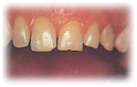 Teeth Empress India, Cost Empress Treatment, Cost Empress Treatment, Empress India