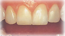 Teeth Empress India, IPS Empress Treatment India, Empress Treatment India, Empress Treatment Hospital India