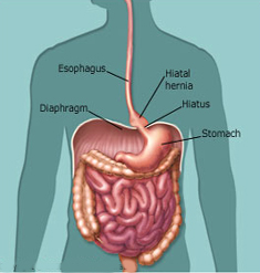 India Surgery Gastric Hiatus Hernia Cost Gastric Hiatus