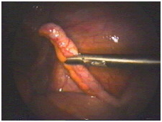 India Surgery Laparoscopic Appendectomy,Cost Lap