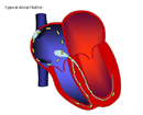 India Information On Nephrology Consultant, India Nephrology Treatment In, India Technological Advances, Nephrology, India Nephrologists Surgery In, India Nephrologists In, India Nephrology Surgery Procedure
