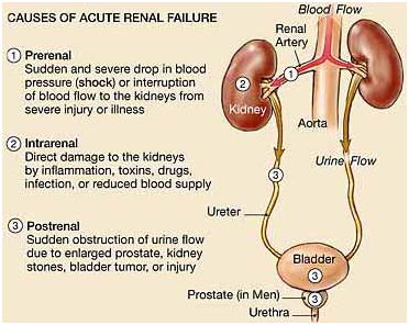 India Surgery Renal Failure,Cost Renal Failure Surgery, Cost Renal Failure Surgery Hospital IND