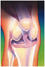 India Surgery Arthroscopy, Arthroscopy, Cost Knee Arthroscopy Surgery