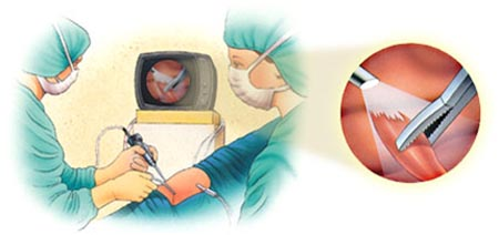 Cost Knee Arthroscopy Surgery, Arthroscopy Surgery, India Arthroscopic Surgery