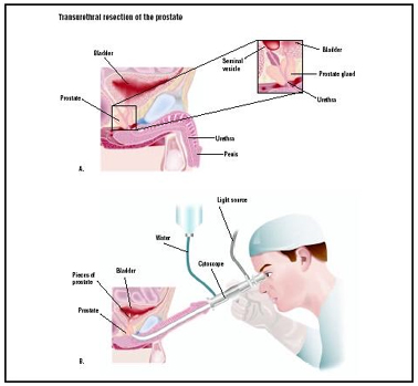 India Surgery Transurethral Resection Prostate, Cost TURP Surgery India, Cost TURP Surgery Hospital