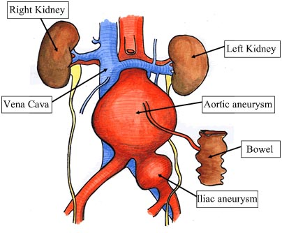India Surgery Abdominal Aortic Aneurysm, Abdominal Aortic Aneurysm Treatment, Abdominal Aortic Aneurysm Surgery