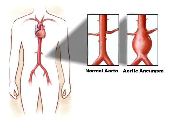 India Surgery Aortic Aneurysm Repair,Cost Aortic Aneurysm Repair, Aortic Aneurysm Repair Surgery