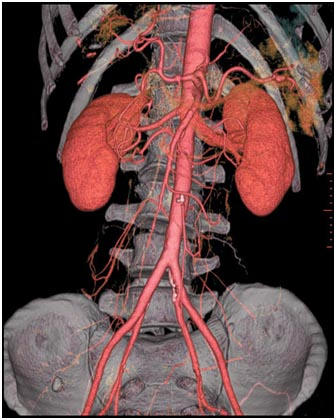 Cost Aortic Aneurysm Repair, Aortic Aneurysm Repair Surgery, Aortic Aneurysm Surgery