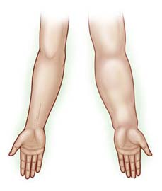 Surgery India Lymphedema, Lymphedema, India Cost Lymphedema Treatment, Lymphedema Treatment