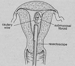 Myomectomy, Myomectomy India, Laparoscopic laser myomectomy , uterine fibroid