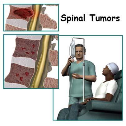 Spinal Cord Tumor in Spine