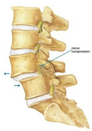 i spondylolithesis Spondylolisthesis is a condition of slipped out bone of vertebrae mr dean mistry treats spondylolisthesis & other spinal disorders in auckland.