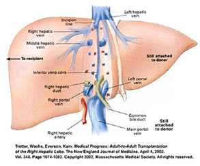 Liver Surgery India, Liver Transplant Delhi India, Cirrhosis India